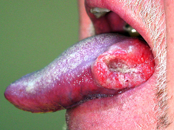 アルコール,ガン,お口,口腔外科