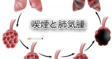 タバコ,喫煙,禁煙,肺気腫