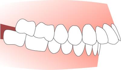 上顎前突(出っ歯)イメージ